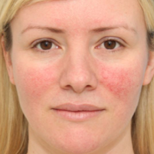 Rosacea Figura Skin Clinic
